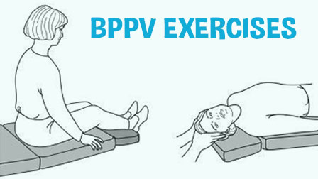 BPPV Exercises For Recovering From Vertigo